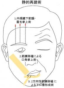 顔面神経麻痺静的再建術